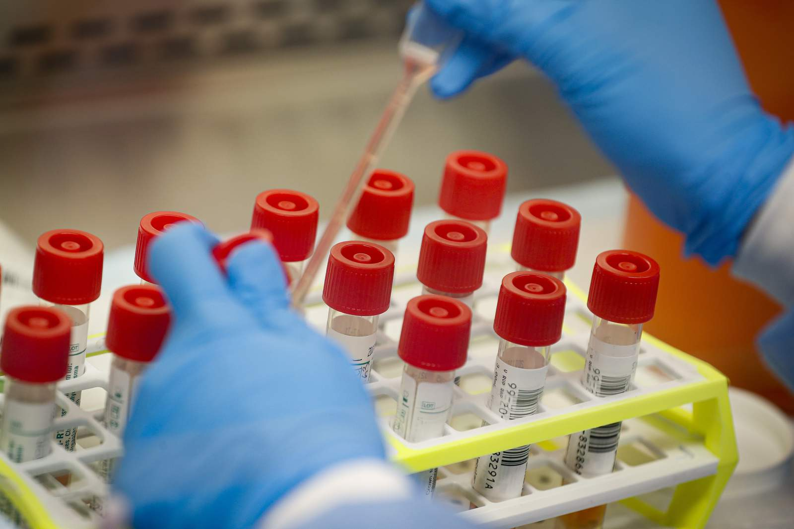 US virus testing faces new headwind: Lab supply shortages