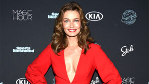 Paulina Porizkova, 55, Reveals Red & Blotchy Face After Plasma Pen Treatment: 'Lookin' Freaky'