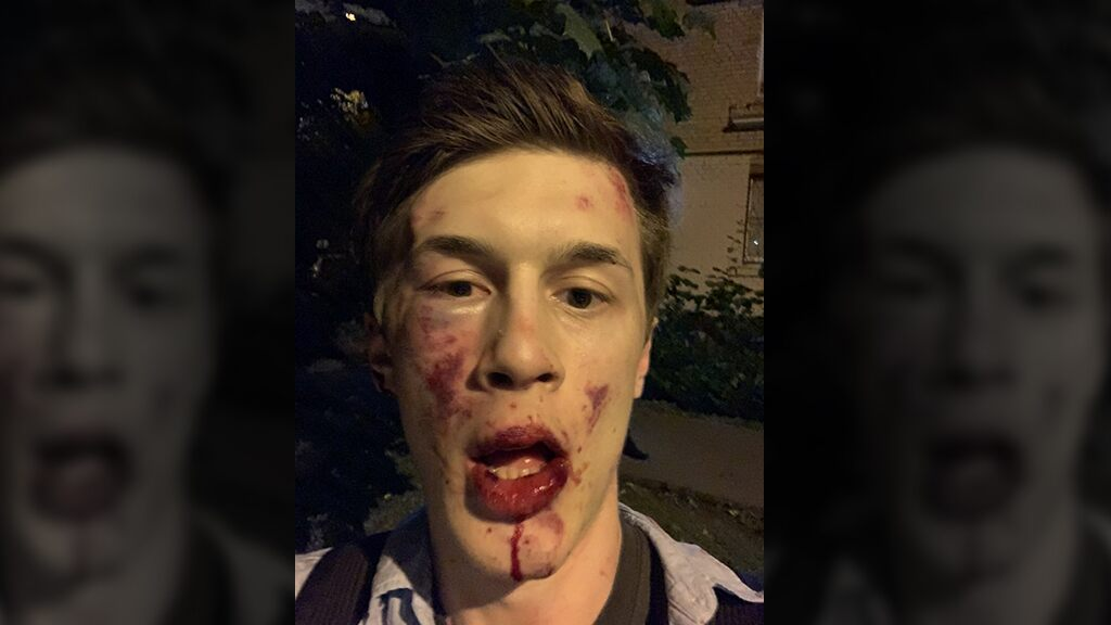 Russian blogger, anti-Kremlin activist attacked outside his apartment