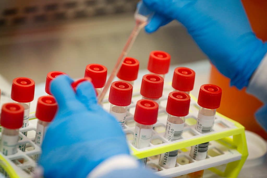 LA County health officer blasts 'herd immunity' coronavirus proposal as immoral, unethical
