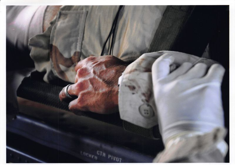 A closeup of then-Sgt. Jim Rudisill's hand, with another person's gloved hand holding his wrist, as he was medically evacuated from Diyala Province, Iraq, in 2005. He sustained multiple injuries and says he also saw the toll war took on his comrades.
