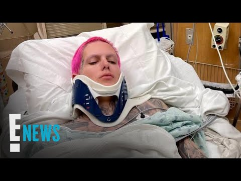 "Jeffree Star Hospitalized After ""Severe"" Car Accident 