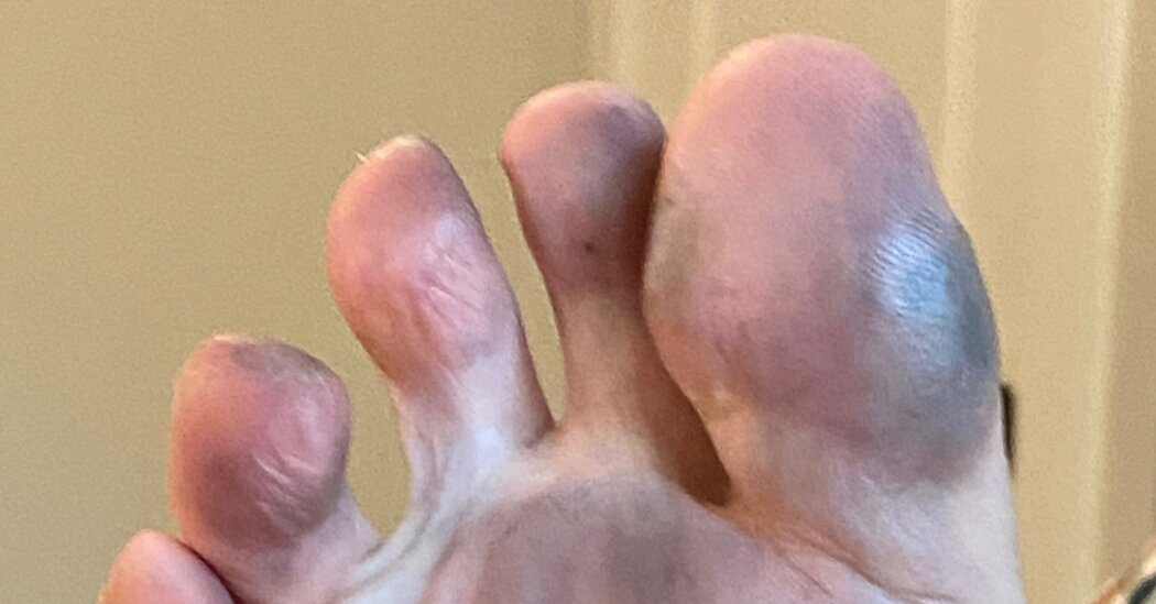 Something Weird on the Beach Was Staining Their Feet. But What?